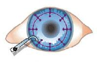 CK procedure diagram