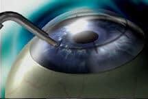 Conductive Keratoplasty image