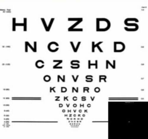 Higher Order Aberration Correcting Optics over a Severe Irregular Cornea Condition