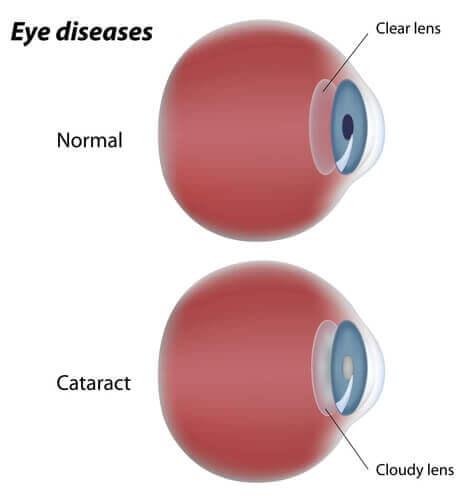 Cataract diagram