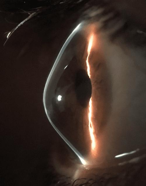 Keratoconus cornea