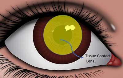 tissue contact lens diagram