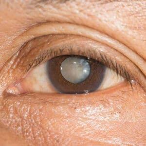 Close up of Cataract