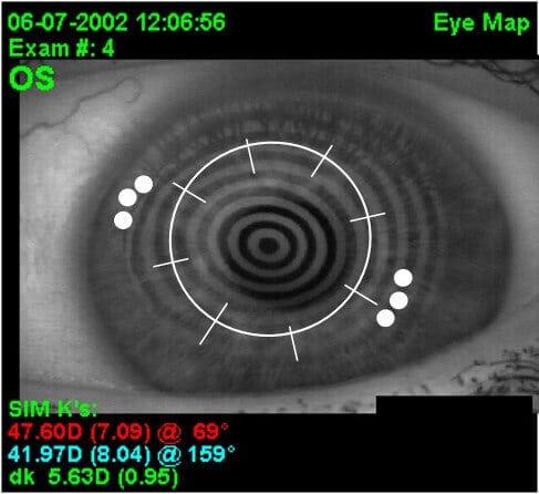 CK spots image