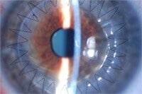 cornea transplant image