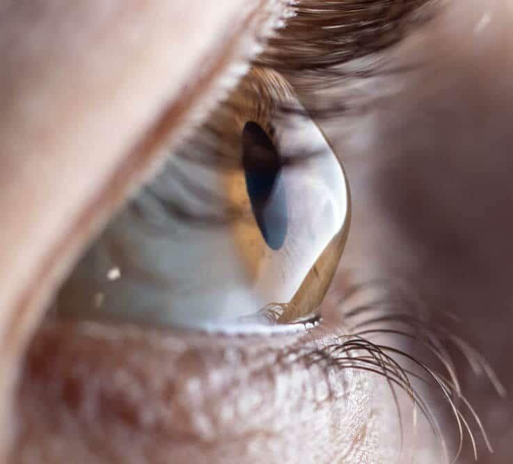 Close up of eye with keratoconus