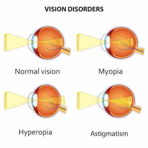 diagram of vision disorders